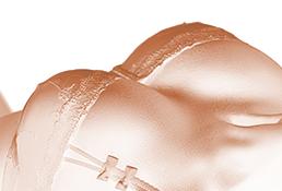 Aesthetische-Bruststraffung-in-Koeln