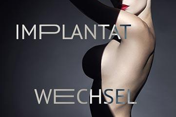 Implantatwechsel in Köln bei erfahrenen Chirurg | JETZT INFO bei Dr.Demir
