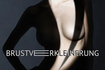 Brustvergkleinerung - in Köln bei erfahrenen Chirurg | JETZT INFO bei Dr.Demir