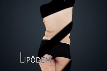 Lipödem - in Köln bei erfahrenen Chirurg | JETZT INFO bei Dr.Demir